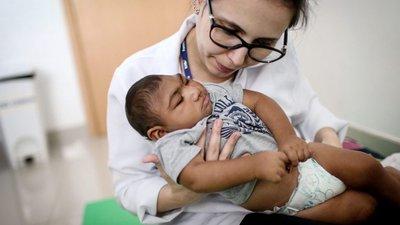 Resultado de imagem para crianças com microcefalia causada por zika