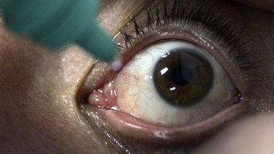 371d65fa3e Reino Unido. Detetada infeção rara com lentes de contacto – Observador