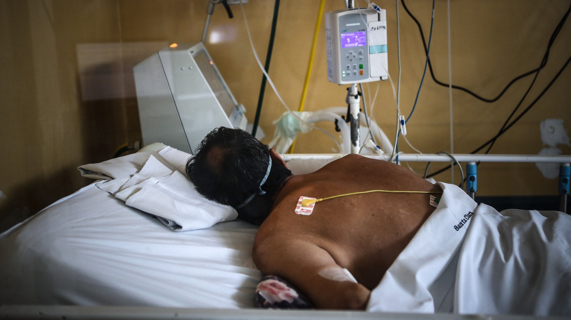 epa09175903 A pacient lies on bed as medical staff work at an intensive care unit in a hospital in Buenos Aires, Argentina, 28 April 2021 (issued 03 May 2021). Argentina enters a new stage of measures to stop the second wave of covid-19 and avoid health chaos, which include older people restrictions, especially in the metropolitan area of Buenos Aires, the most affected by the virus.  EPA/Juan Ignacio RONCORONI