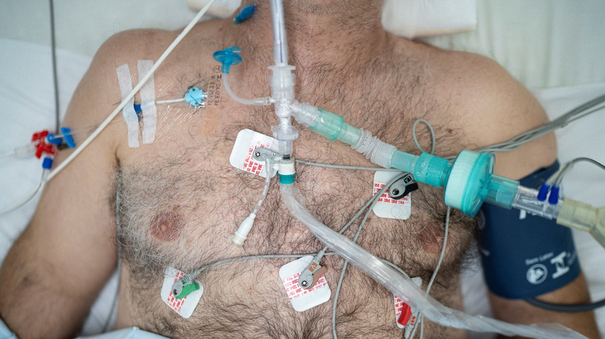 epa09094352 The chest of a patient who in turn is intubated in the Centenario hospital, in São Leopoldo, Rio Grande do Sul, Brazil, 23 March 2021 (Issued 24 March 2021). The country will possibly reach the figure of 300,000 deaths on 24 March from causes related to the coronavirus. São Leopoldo, a city in the Porto Alegre metropolitan region, has just over 230,000 inhabitants and a single municipal hospital, with 18 beds to provide intensive care to COVID-19 patients.  EPA/Daniel Marenco