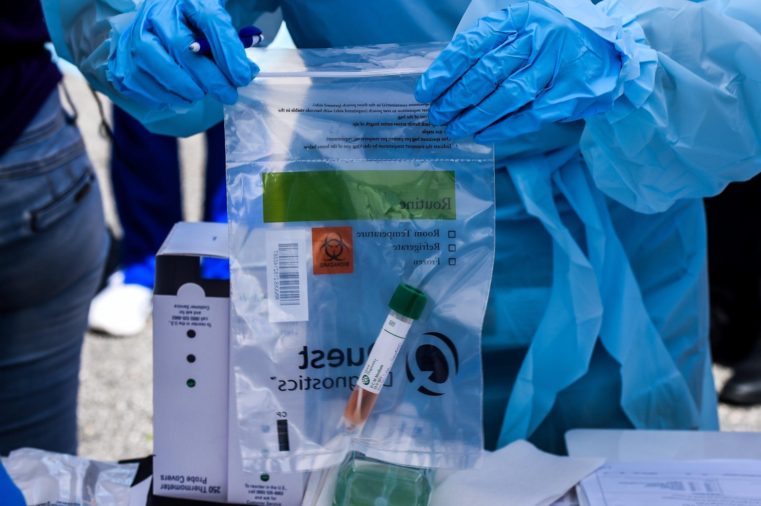 US-HEALTH-VIRUS-TEST