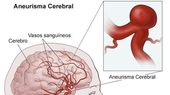 O aneurisma cerebral surge nas curvas ou bifurcações das artérias do cérebro