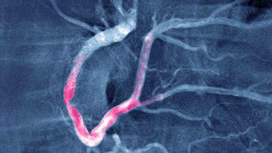 As doenças cardiovasculares, como por exemplo o enfarte do miocárdio (na imagem), são a principal causa de morte no mundo, segundo a organização