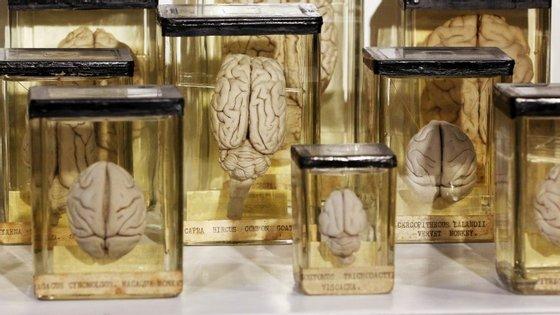 A maturidade do cérebro criado em laboratório corresponde à de um feto com cinco semanas