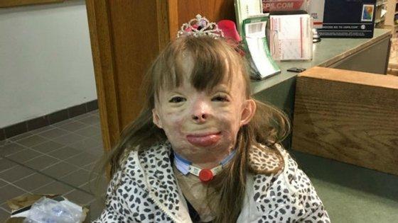 Há dois anos Safyre Terry sofreu graves queimaduras tendo, inclusivamente, perdido a mão direita e o pé esquerdo. Foi salva pelo pai que utilizou o corpo para a proteger das chamas.