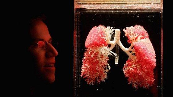 Cancro do pulmão continua a ser o que mais mata