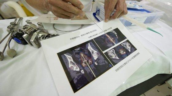 Greve anunciada pelos técnicos de diagnóstico e terapêutica
