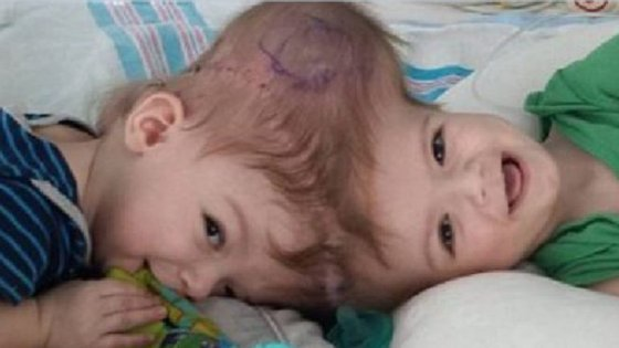 Gémeos veem-se pela primeira vez após cirurgia que os separou