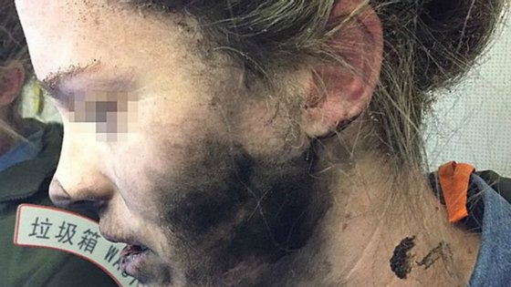 As marcas da explosão na cara da australiana são visíveis