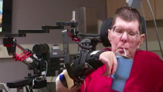 Bill Kochevar levou implantes elétricos no córtex cerebral e sensores nos seus braços, de forma a permitir uma estimulação dos músculos