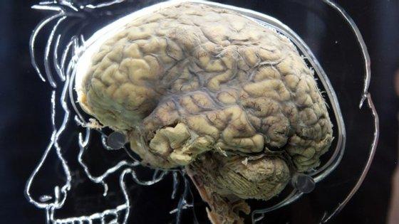 Adrian Owen, neurocientista do Instituto do Cérebro e Mente de Ontário, lançou o maior estudo de sono e cognição do mundo