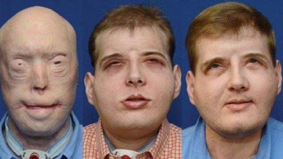 Ao todo,foram71 cirurgiasplásticasparamelhoraro aspeto ea funcionalidadedo seu rosto