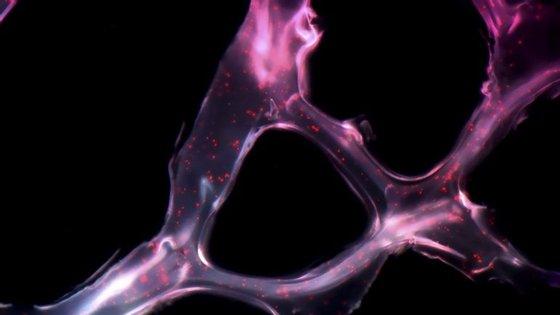 """Verificou-se que o uso deste novo composto é mais eficaz nos cancros da mama ditos """"triplo negativos"""" e HER2 positivo"""