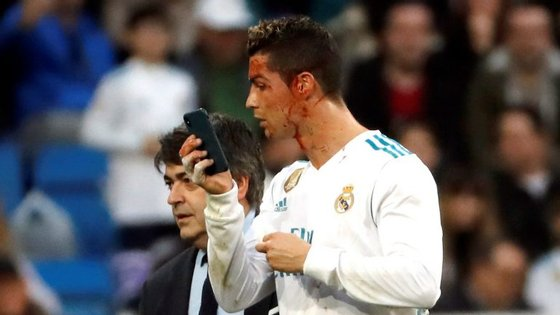 Cristiano Ronaldo pediu um telemóvel para ver os ferimentos na cara