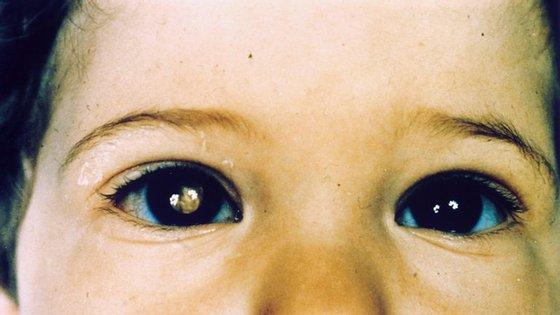 """A """"pupila branca"""" pode revelar a existência de um tumor no interior do olho"""