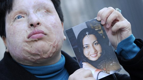 Ameneh Bahrami, iraniana, posa com uma fotografia de como era antes de um homem a atacar com ácido. Como pena, o atacante também foi cegado com ácido