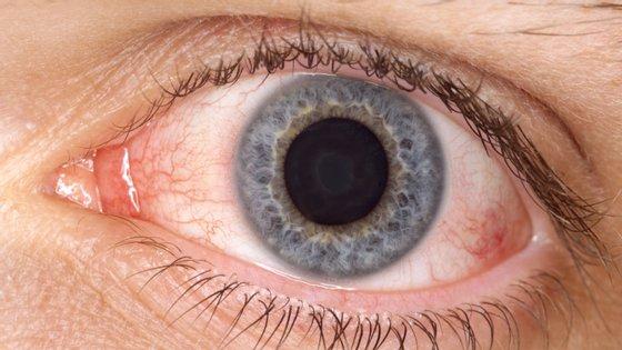 Associação Americana de Oftalmologia alerta para doentes com conjuntivite: pode ser um dos sintomas da Covid-19.