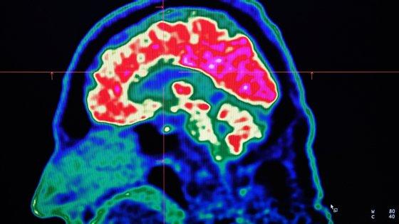 """O estudo das cientistas da Universidade de Stanford foi publicado este mês na revista """"Journal of Neuroscience"""""""