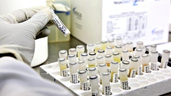 """No comunicado, a universidade detalhou existirem mais de cem vacinas da Covid-19 em desenvolvimento no mundo, mas que """"estão a enfrentar desafios árduos em termos de eficácia, efeitos secundários e produção"""""""