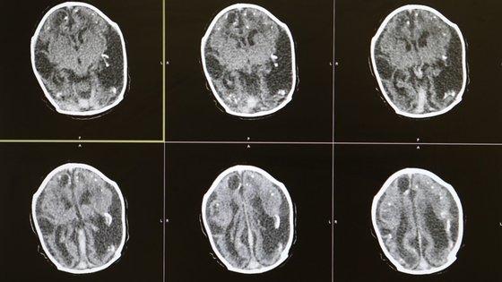 A investigação encontrou danos cerebrais em 19% dos indivíduos que morreram de Covid-19