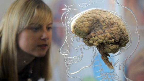 BRISTOL, UNITED KINGDOM - MARCH 10: Kerrie Grist looks at a real human brain being displayed as part of new exhibition at the @Bristol attraction on March 8, 2011 in Bristol, England. The Real Brain exhibit - which comes with full consent from a anonymous donor and needed full consent from the Human Tissue Authority - is suspended in a large tank engraved with a full scale skeleton on one side and a diagram of the central nervous system on the other and is a key feature of the All About Us exhibition opening this week. (Photo by Matt Cardy/Getty Images)